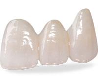Зубной мост на передние зубы из безметалловой керамики